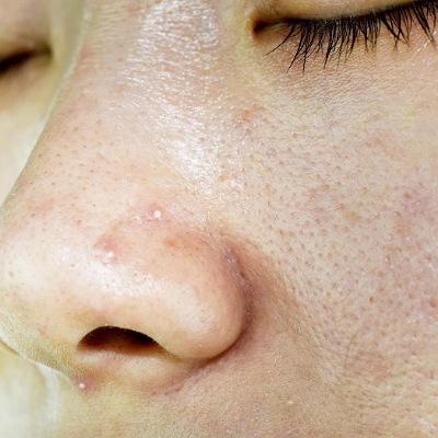 Pele oleosa ou poros