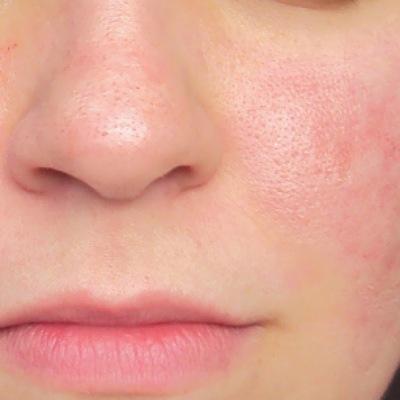 Pele sensível ou irritada